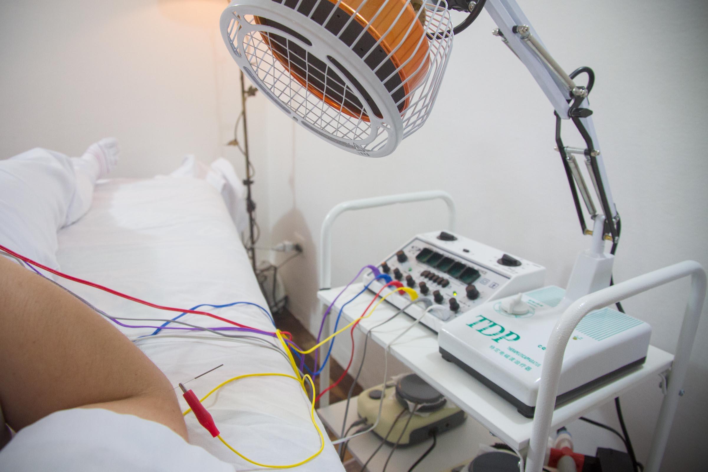 Eletroacupuntura/Haihua