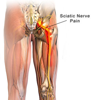 sciatic-nerve-and-nerve-pain.jpg