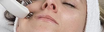 Facial Bio Collagen Treatment.jpg