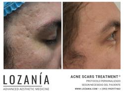 ACNE SCARS TREATMENT
