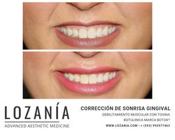 Corrección de la sonrisa gingival