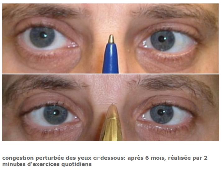 Convergence oculaire améliorer