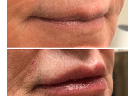 Loosing Lip Volume as you age??? We can fix that!!! Lip filler improves lip volume, fine lines and wrinkles and gives a youthful appearance.