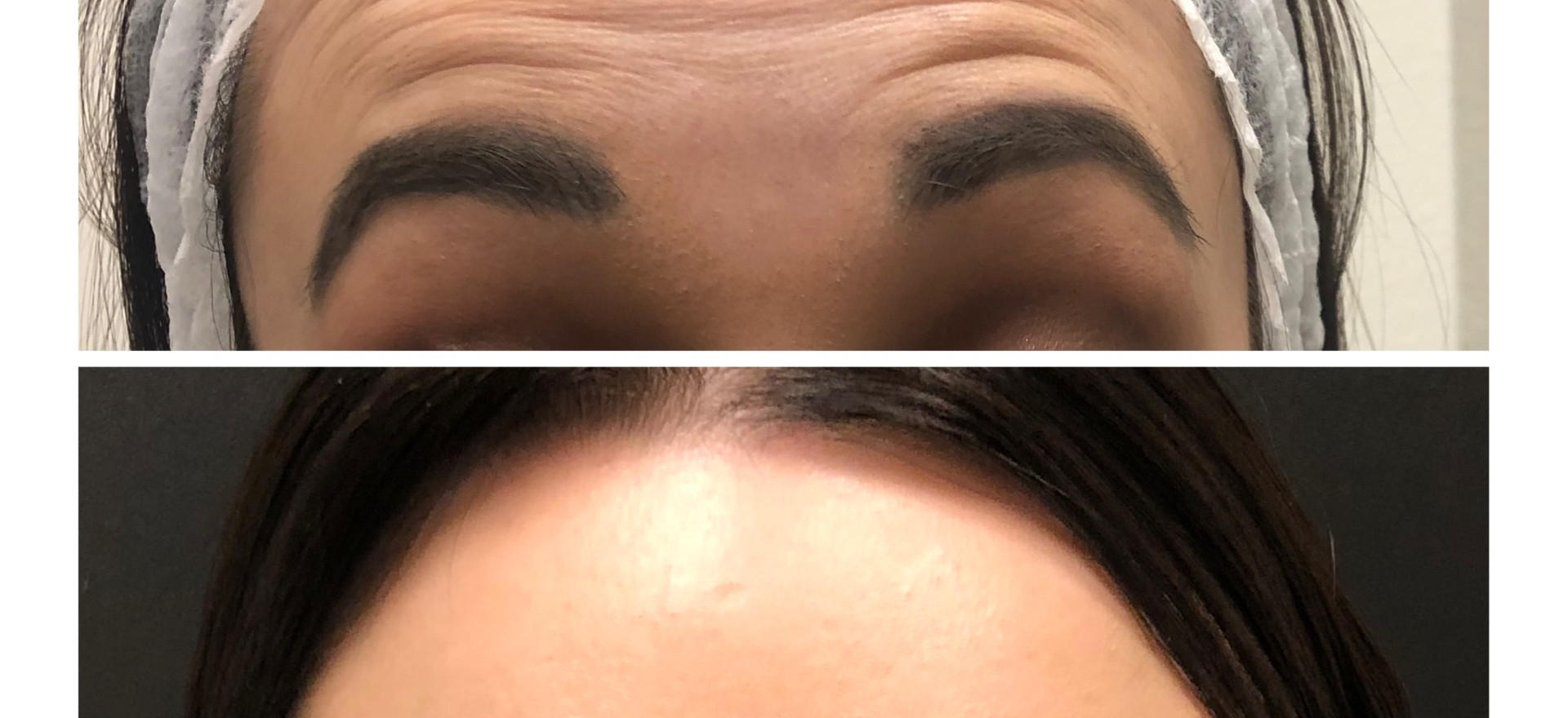 Baby Botox for the young client relaxes the muscles on the forehead (Frontalis) giving a clean smooth look.