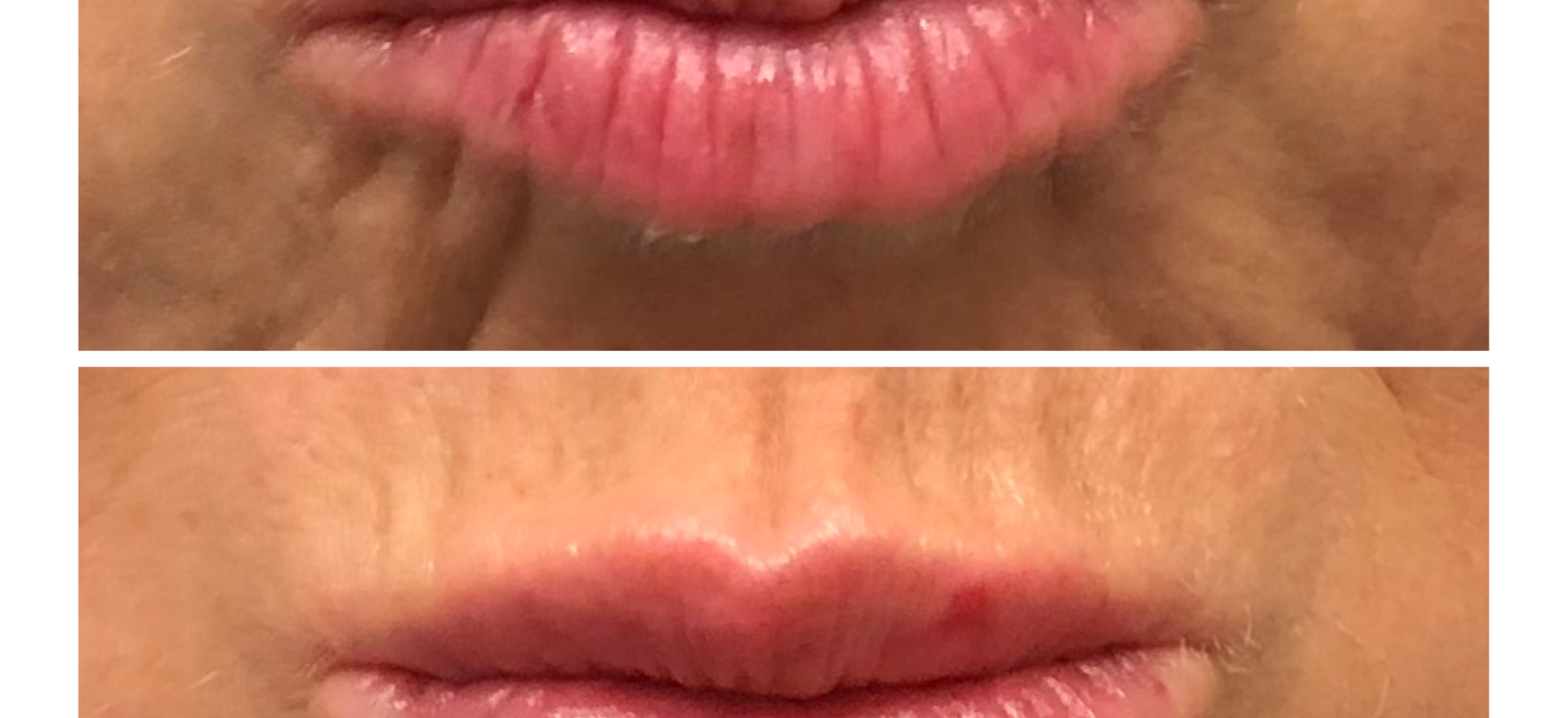 Tired of lip lines????? We add lip filler for lip definition to decrease lip lines and add volume.