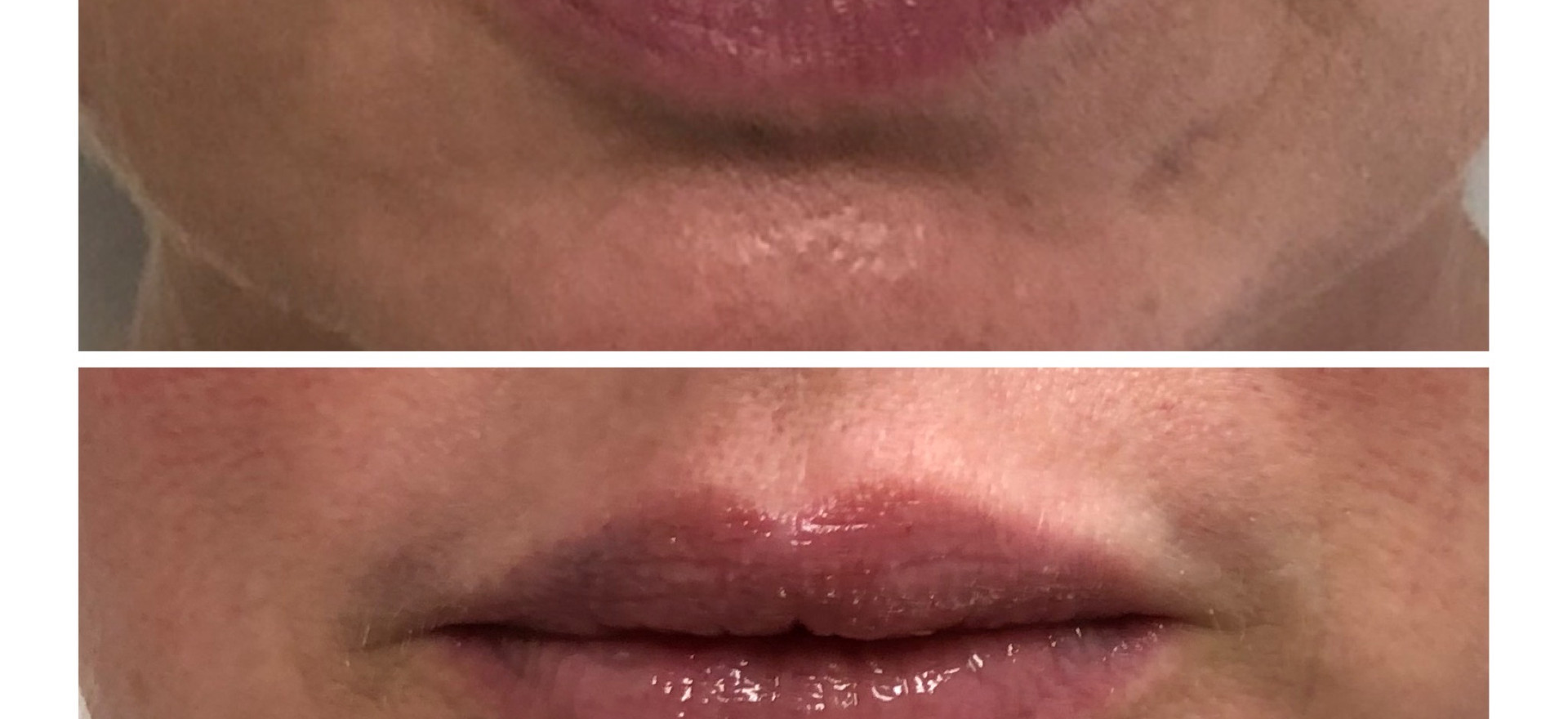 One Syringe of Soft Lip Filler for plump lips with a natural looking key hole effect.
