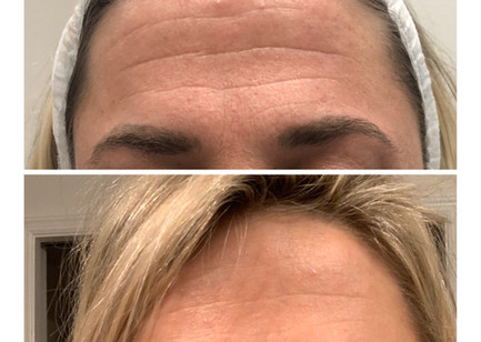 Wrinkles Wrinkles Go Away........ Combination of Botox and 1 Microneedling treatment with amazing improvement.  Alastin Nectar and Restorative added to the regeneration process.  She is scheduled for 2 more Microneedling so stay tuned for her continued regenerative journey.