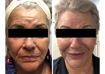 Wow what a difference......Dermal Fillers placed in the cheeks, marionette lines, lips and commissures. The face appears fresher, less tired and younger looking.