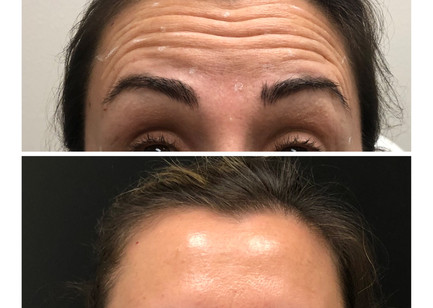 Botox or Dysport your choice......for the middle aged client to improve forehead winkles providing a smoother younger look.