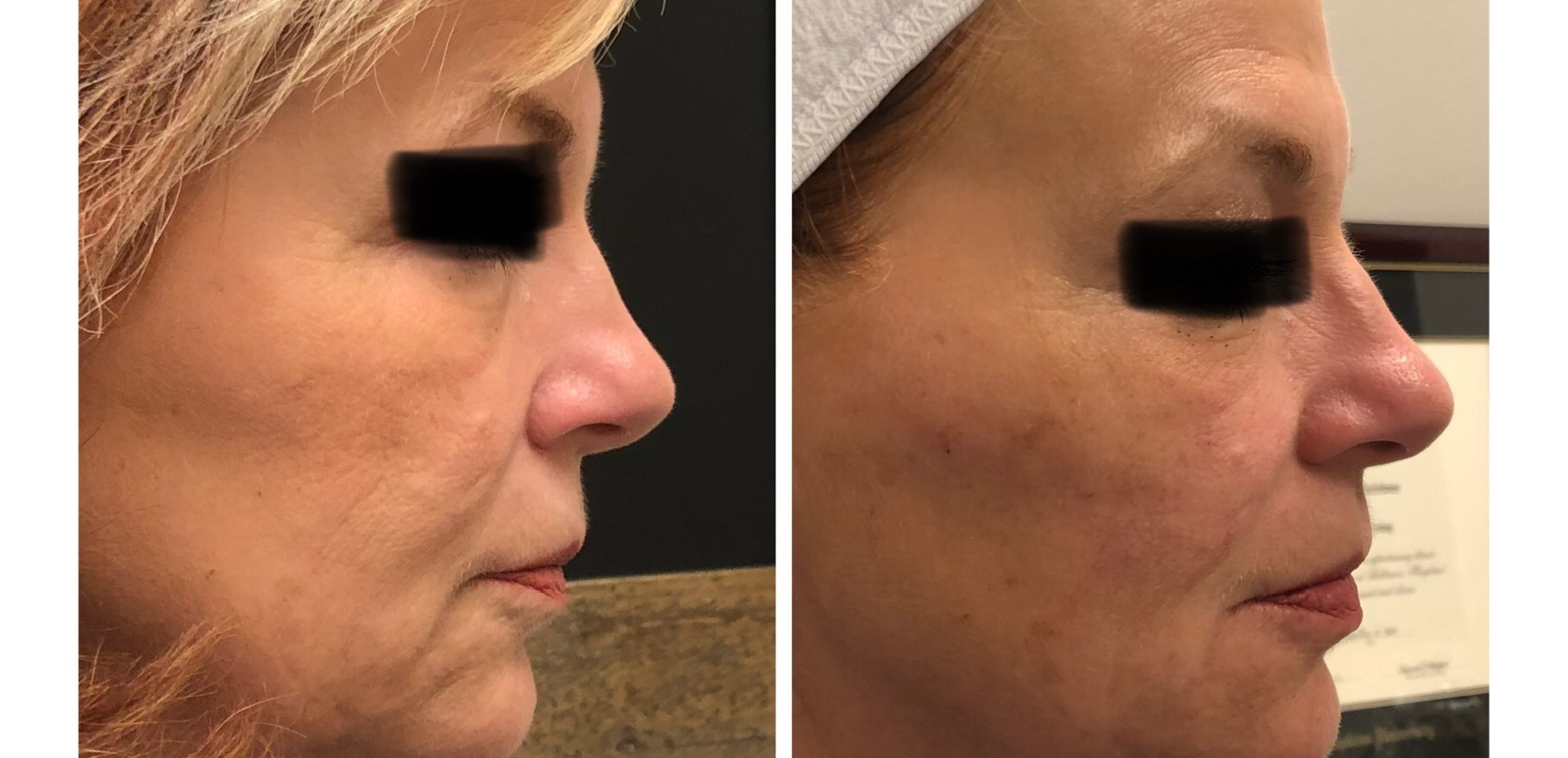 Lift is everything as we age......Dermal Filler placed in the cheeks allowing a lift for a  cleaner jaw line as well as less wrinkles and sag in the marionette area next to the mouth.