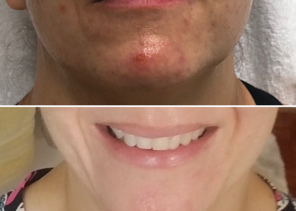 Medical Grade Class II Bellus SkinPen Microneedling  improvement for acne with the assistance of Alastin Retinol 0.5% two weeks following 1 microneedling treatment.  Three treatments recommended for the best results.
