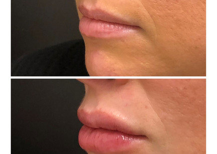 Beautiful lips to start....... however, this client wanted a little volume to give the look of plum luscious lips.