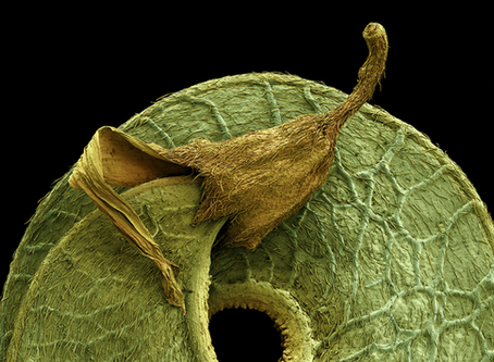 Colored Micrographs Magnify Pollen Seeds, Plant Cells, and Leaf Structures in Photos by Rob Kesseler