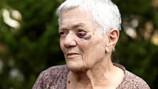 We Support Change in Elder Abuse Laws