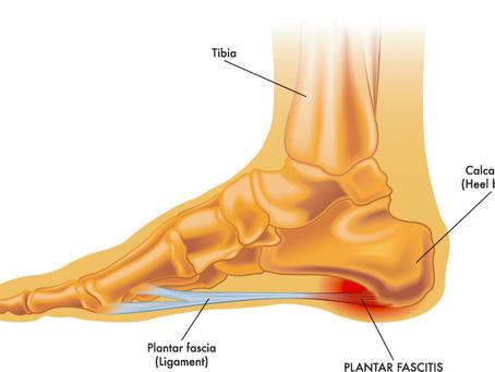 Heel Pain and Plantar Fasciitis
