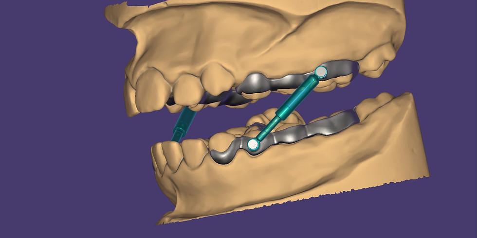 Entdecken Sie die digitale Kieferorthopädie mit exocad PartialCAD.