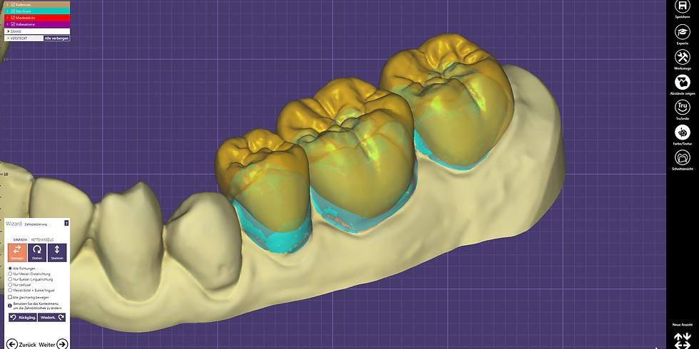 exocad DentalCAD 2.4 Plovdiv für Einsteiger und Fortgeschrittene