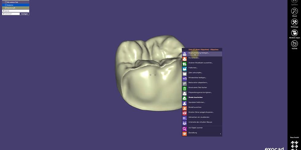 Grundlagen und Einstieg im dentalen CAD-Programm exocad™ (1)