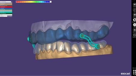 Konstruktionsbeispiele in 3D-Ansicht