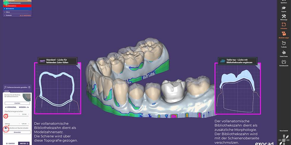 exocad DentalCAD 3.0 Galway für Einsteiger und Fortgeschrittene