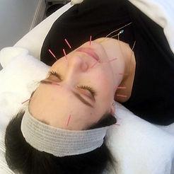 Martine-needles2.jpg