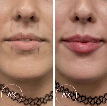 before and after picture of Lip Fillers In Newcastle