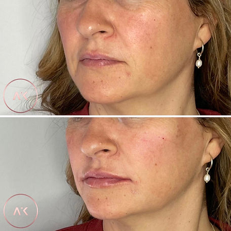 before and after pictuer of lady getting Midface Treatment In Newcastle