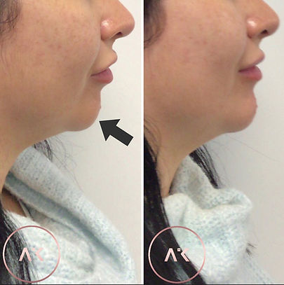 before and after picture of a female after getting Chin & Jawline Treatment In Newcastle