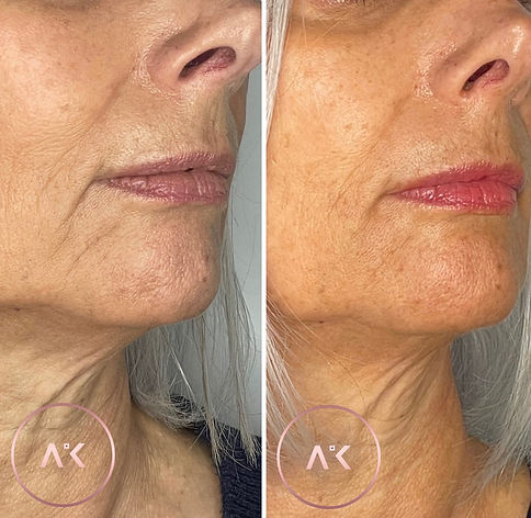 before and after picture of Marionette Treatment In Newcastle