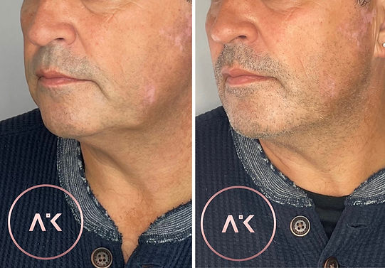 before and after picture of male after getting Chin & Jawline Treatment In Newcastle