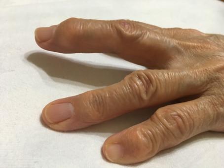 手の治療、なぜ病院でダメなのに当院では良くなるのか?