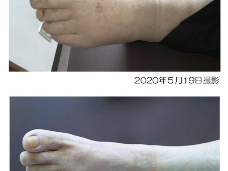 浮腫の治療実例
