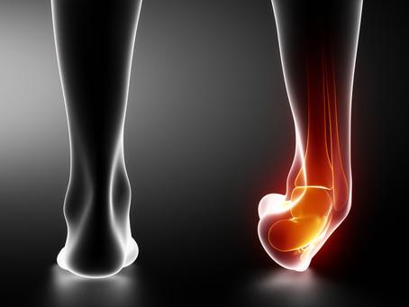 Recurrent ankle sprains