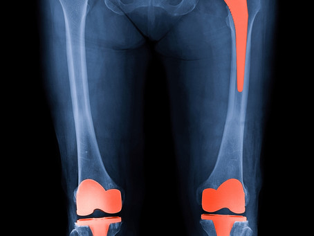 Getting the best out of your knee or hip replacement