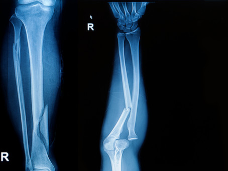 Would you know if you broke a bone?