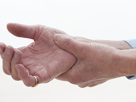 Osteoarthritis of the hand - here's what you can do....