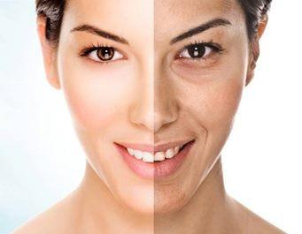АЛМАЗНА МІКРОДЕРМАБРАЗІЯ - сучасний, радикальний і безпечний спосіб регенерації шкіри обличчя і тіла. Видалення поверхневого шару шкіри відбувається завдяки спеціальній насадці. Оброблена поверхня виглядає більш молодою, свіжою і гладкою. Зникають дрібні дефекти шкіри, викликані надмірною дією сонця, дрібні шрами від вугрового висипу, розширені пори, поверхневі зморшки.
