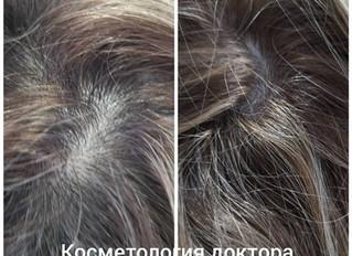 Результат филлера для волос