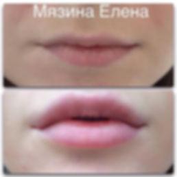 Увеличение губ Клин