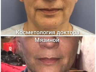APTOS до и после