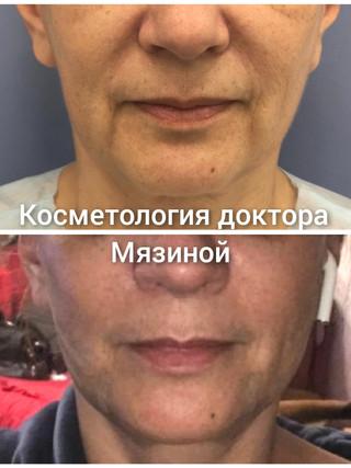 IMG_20210401_162650_990.jpg