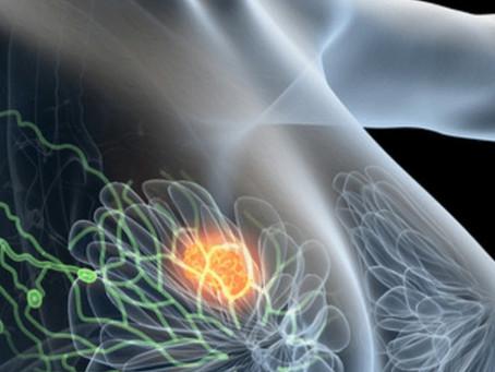 Article 7 | Cancer du sein : les contaminants complotent-ils avec les tumeurs?