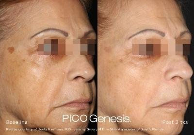Laser Facial & Picogenesis