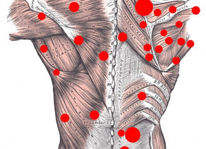 How can Vodder's MLD resolve trigger points without pain?