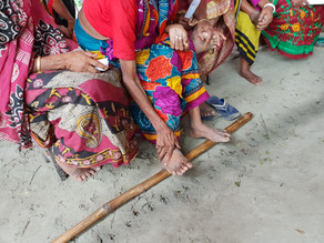 Lymphoedema in Rural Bangladesh