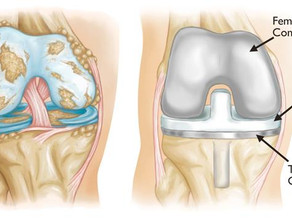 MLD and total knee replacement