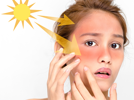 Everything You Need to Know About Sunburn (But Didn't Know You Need to Know, Ya Know?)