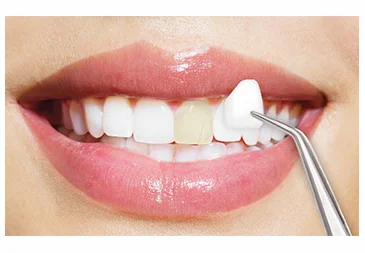 dental-veneers-turkey-dentist