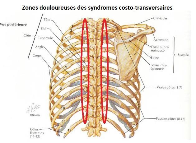 syndrome costo transversaire douleur cotes