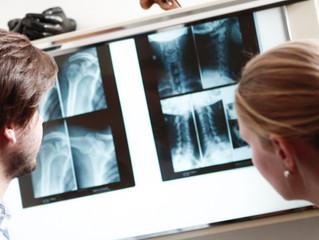L'arthrose est elle responsable de mon inconfort chronique?